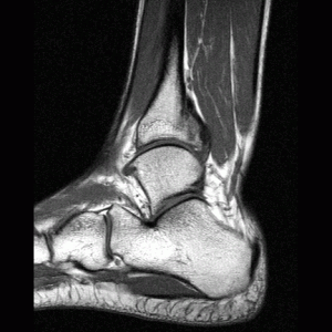 мр томография голеностопного сустава