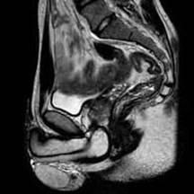 снимок мужского малого таза на МРТ
