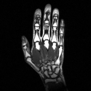 МРТ суставов кисти