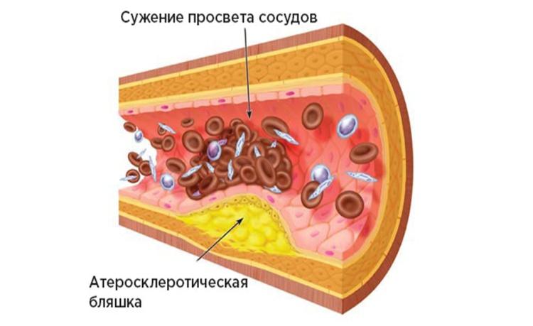 холестерин 2
