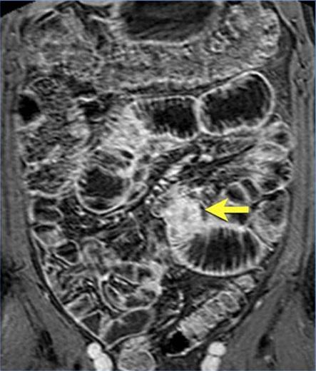 аденокарцинома1