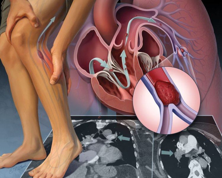 Deep Vein Thrombosis/Pulmonary Embolism