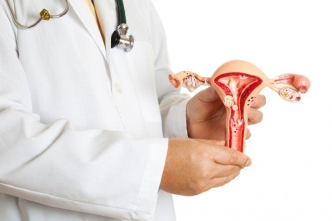 Диагностика миомы матки МРТ