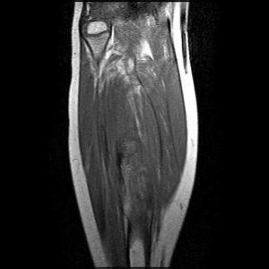 МРТ мягких тканей конечностей