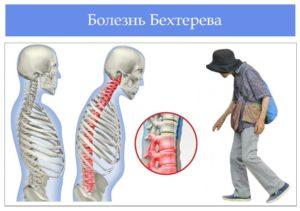 диагностика болезни Бехтерева